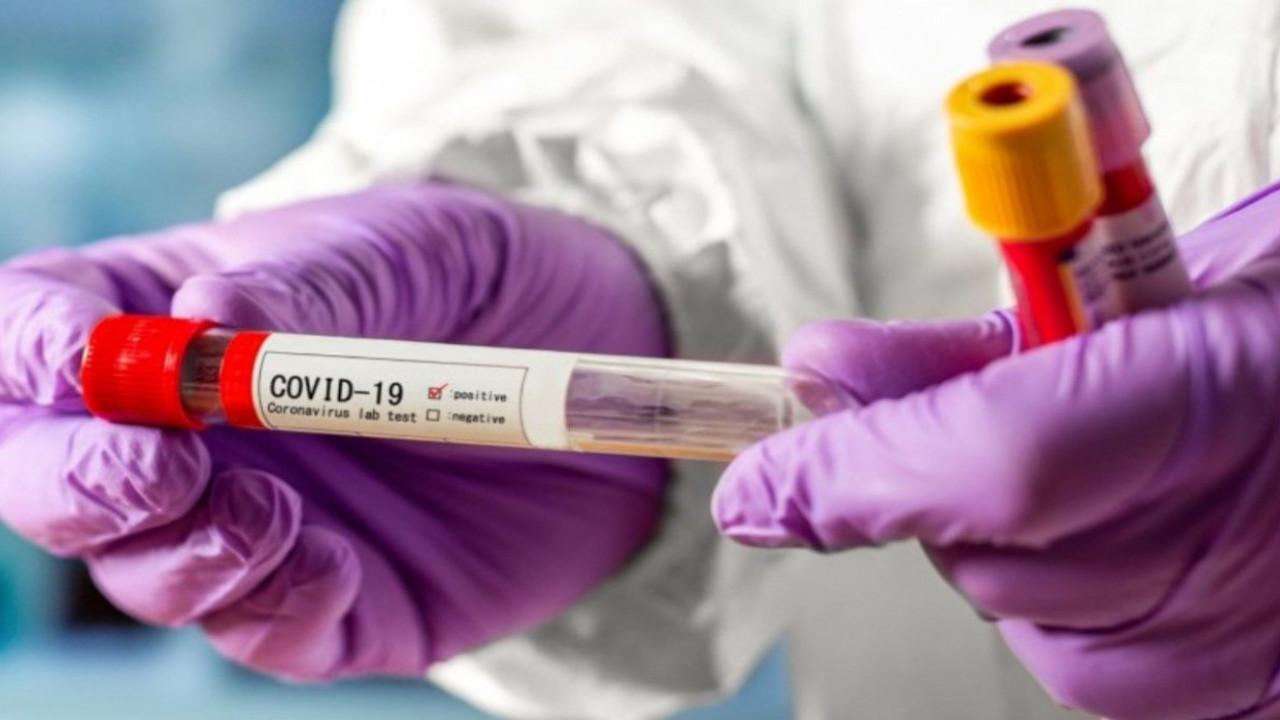 Собянин пригласил жителей Москвы бесплатно пройти ПЦР-тест на коронавирус